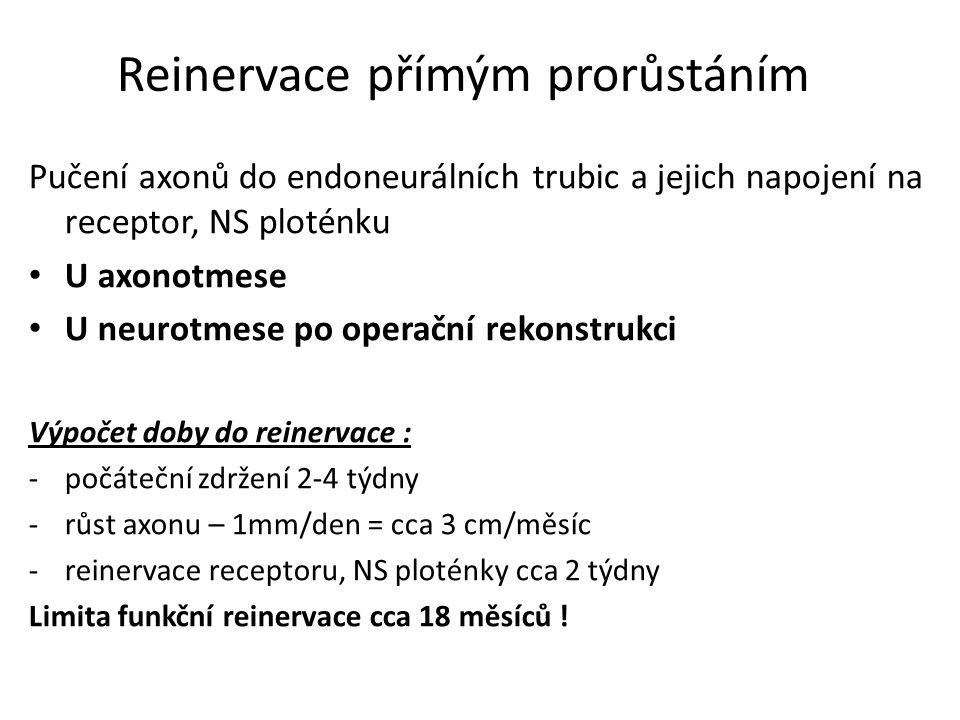 Reinervace přímým prorůstáním Pučení axonů do endoneurálních trubic a jejich napojení na receptor, NS ploténku U axonotmese U neurotmese po operační r