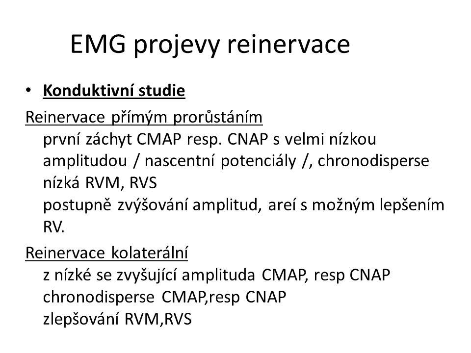 EMG projevy reinervace Konduktivní studie Reinervace přímým prorůstáním první záchyt CMAP resp. CNAP s velmi nízkou amplitudou / nascentní potenciály