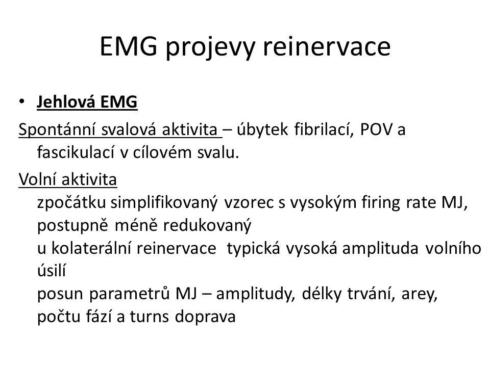 EMG projevy reinervace Jehlová EMG Spontánní svalová aktivita – úbytek fibrilací, POV a fascikulací v cílovém svalu. Volní aktivita zpočátku simplifik