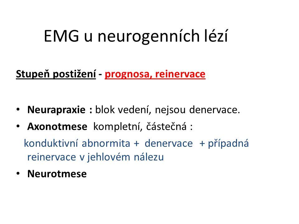 EMG u neurogenních lézí Stupeň postižení - prognosa, reinervace Neurapraxie : blok vedení, nejsou denervace. Axonotmese kompletní, částečná : kondukti
