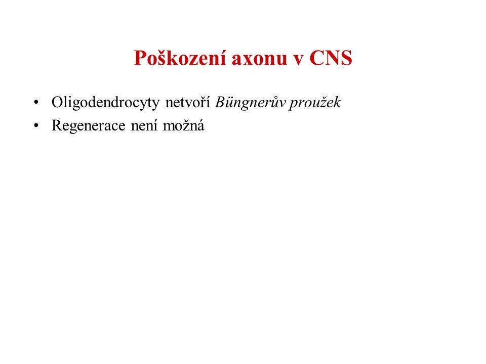 Poškození axonu v CNS Oligodendrocyty netvoří Büngnerův proužek Regenerace není možná