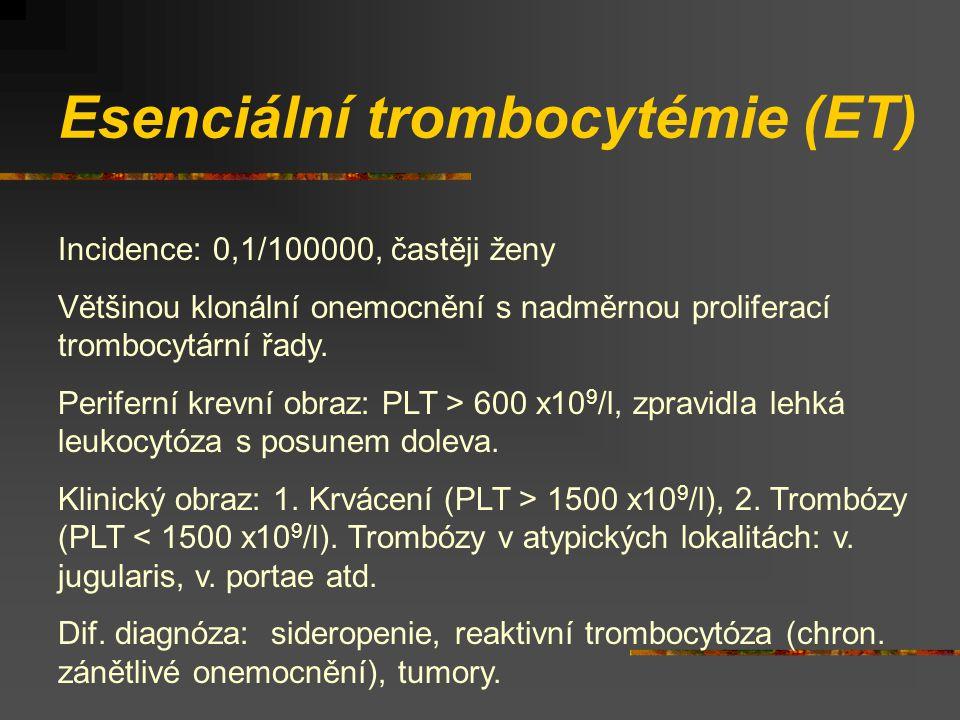 Esenciální trombocytémie (ET) Incidence: 0,1/100000, častěji ženy Většinou klonální onemocnění s nadměrnou proliferací trombocytární řady.