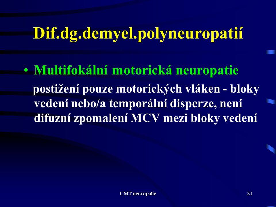 CMT neuropatie21 Dif.dg.demyel.polyneuropatií Multifokální motorická neuropatie postižení pouze motorických vláken - bloky vedení nebo/a temporální di