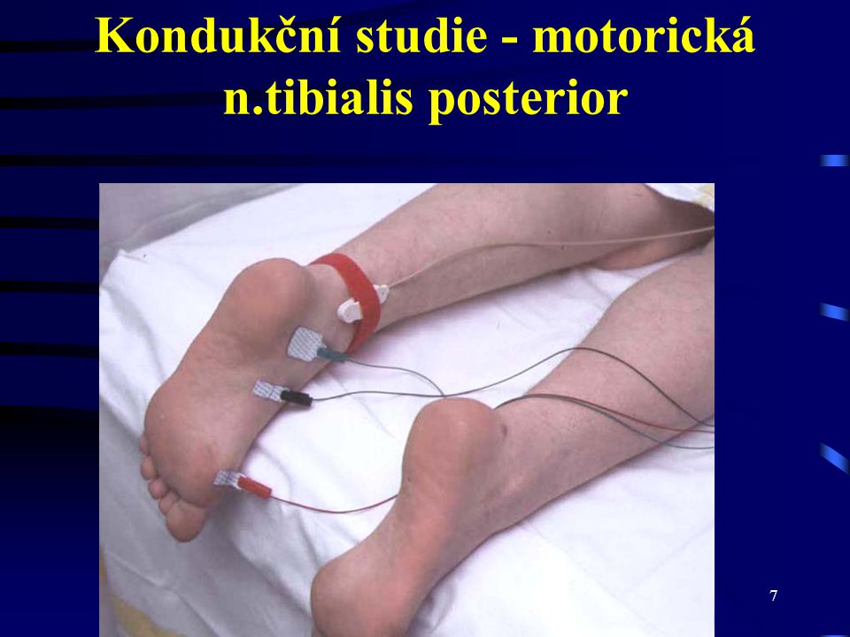 CMT neuropatie7 Kondukční studie - motorická n.tibialis posterior