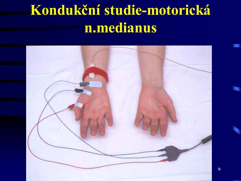 CMT neuropatie10 Motorický neurogram n.medianus