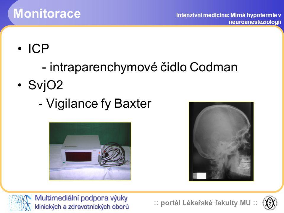 :: portál Lékařské fakulty MU :: Monitorace Intenzivní medicína: Mírná hypotermie v neuroanesteziologii Kontinuálně - EKG, MAP,CVP, SaO2, EtCO2