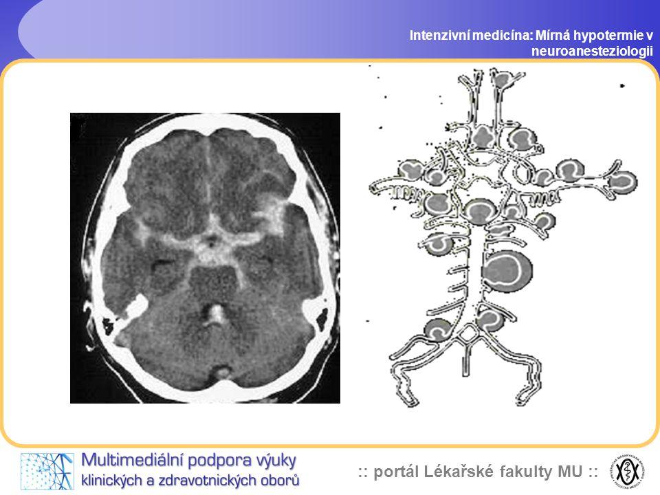 :: portál Lékařské fakulty MU :: Clipping aneurysmat mozkových cév Intenzivní medicína: Mírná hypotermie v neuroanesteziologii vysoké riziko vzniku va