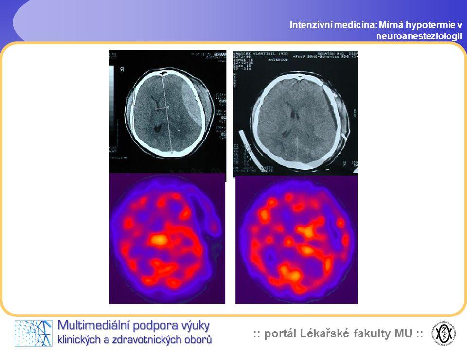 :: portál Lékařské fakulty MU :: Klinické použití hypotermie v současnosti Intenzivní medicína: Mírná hypotermie v neuroanesteziologii Neurochirurgie