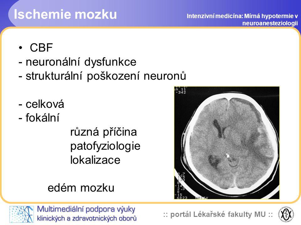 :: portál Lékařské fakulty MU :: Intenzivní medicína: Mírná hypotermie v neuroanesteziologii