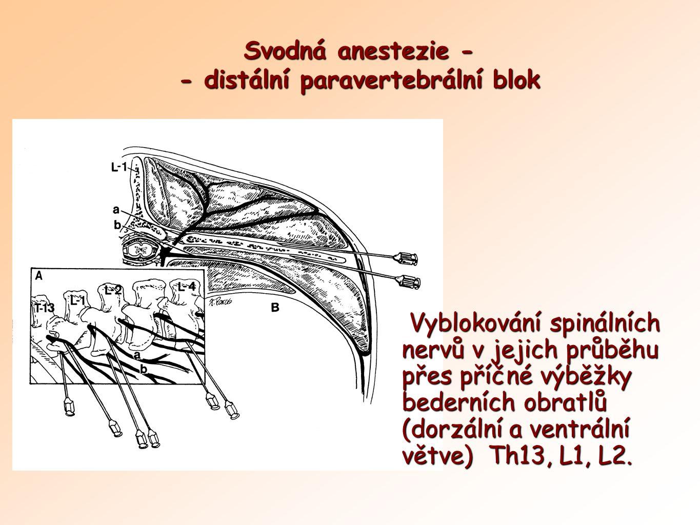 Svodná anestezie - - distální paravertebrální blok Vyblokování spinálních nervů v jejich průběhu přes příčné výběžky bederních obratlů (dorzální a ven