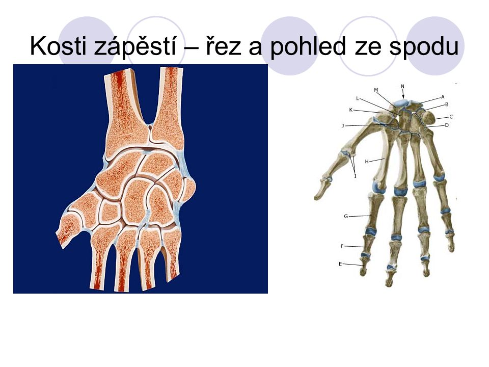 Kosti zápěstí – řez a pohled ze spodu