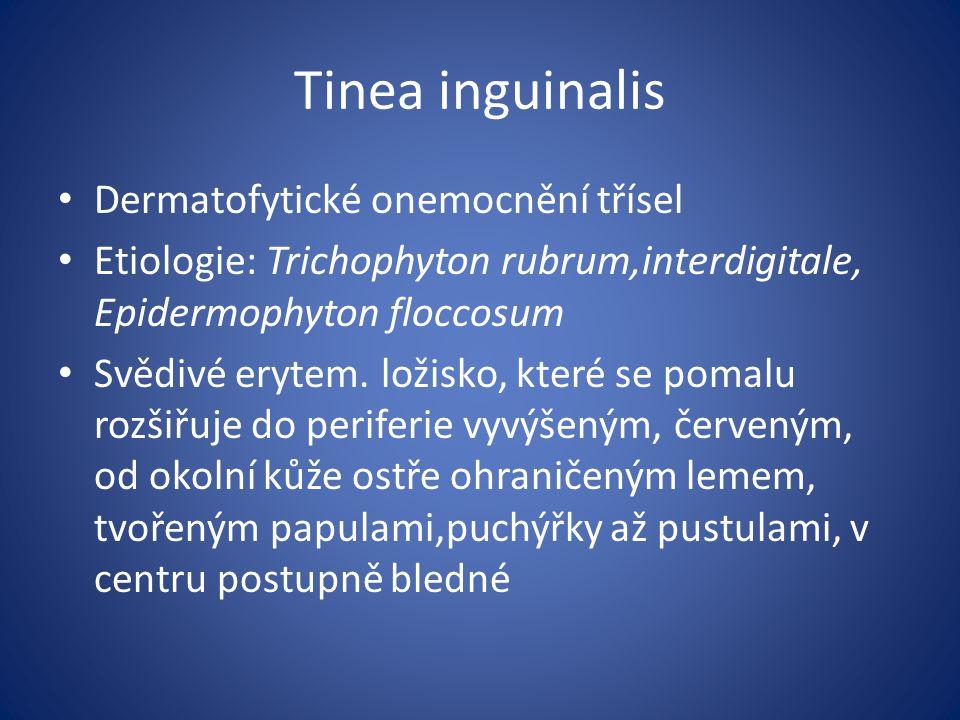 Tinea inguinalis Dermatofytické onemocnění třísel Etiologie: Trichophyton rubrum,interdigitale, Epidermophyton floccosum Svědivé erytem.