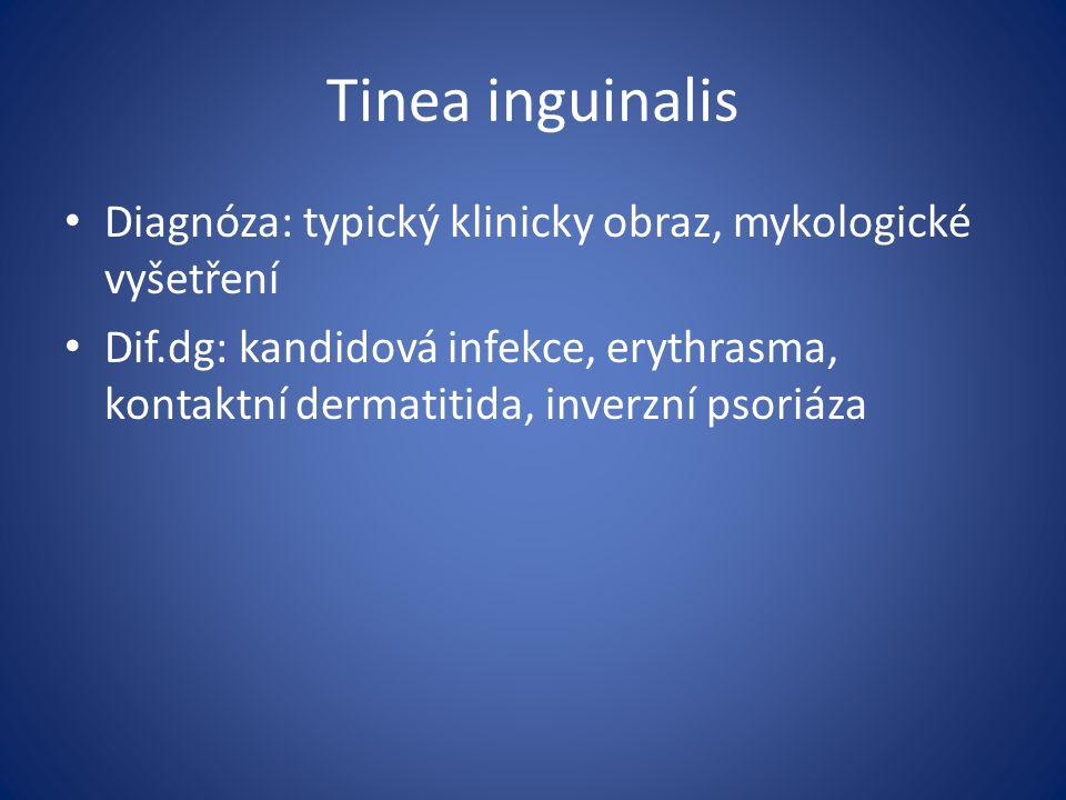 Tinea inguinalis Diagnóza: typický klinicky obraz, mykologické vyšetření Dif.dg: kandidová infekce, erythrasma, kontaktní dermatitida, inverzní psoriáza