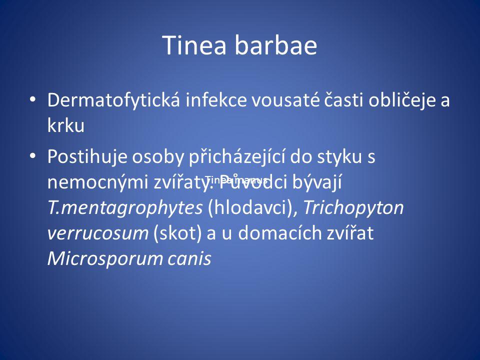 Tinea barbae Dermatofytická infekce vousaté časti obličeje a krku Postihuje osoby přicházející do styku s nemocnými zvířaty. Původci bývají T.mentagro