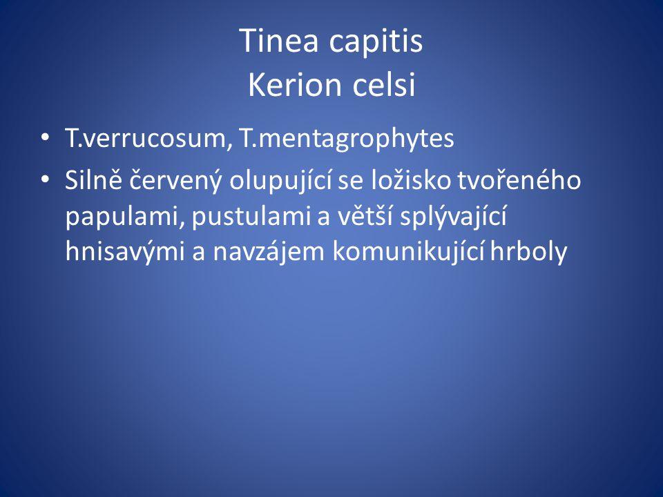 Tinea capitis Kerion celsi T.verrucosum, T.mentagrophytes Silně červený olupující se ložisko tvořeného papulami, pustulami a větší splývající hnisavými a navzájem komunikující hrboly