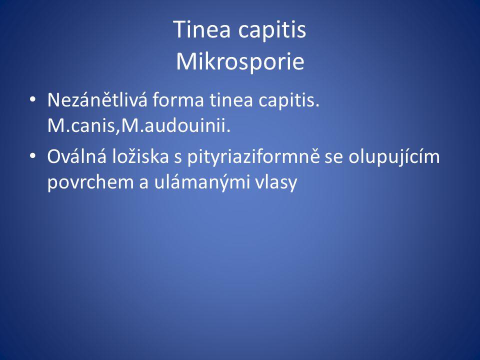 Tinea capitis Mikrosporie Nezánětlivá forma tinea capitis. M.canis,M.audouinii. Oválná ložiska s pityriaziformně se olupujícím povrchem a ulámanými vl