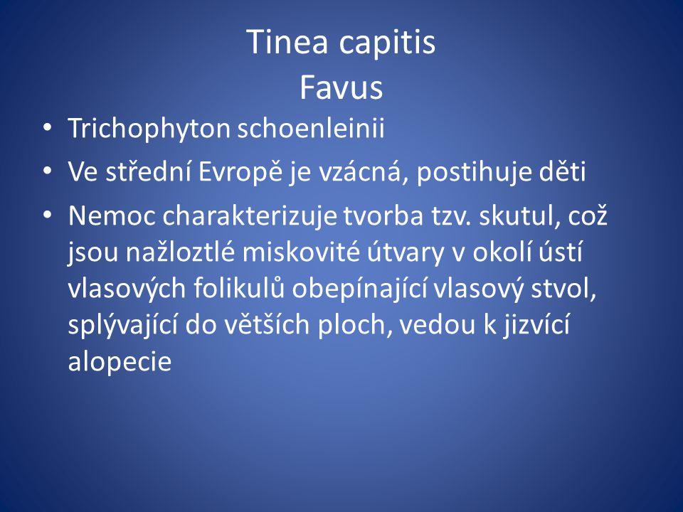 Tinea capitis Favus Trichophyton schoenleinii Ve střední Evropě je vzácná, postihuje děti Nemoc charakterizuje tvorba tzv. skutul, což jsou nažloztlé