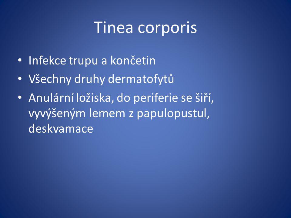 Tinea corporis Infekce trupu a končetin Všechny druhy dermatofytů Anulární ložiska, do periferie se šiří, vyvýšeným lemem z papulopustul, deskvamace