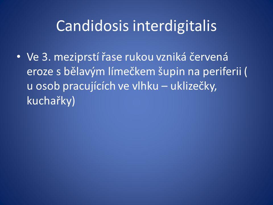 Candidosis interdigitalis Ve 3. meziprstí řase rukou vzniká červená eroze s bělavým límečkem šupin na periferii ( u osob pracujících ve vlhku – uklize