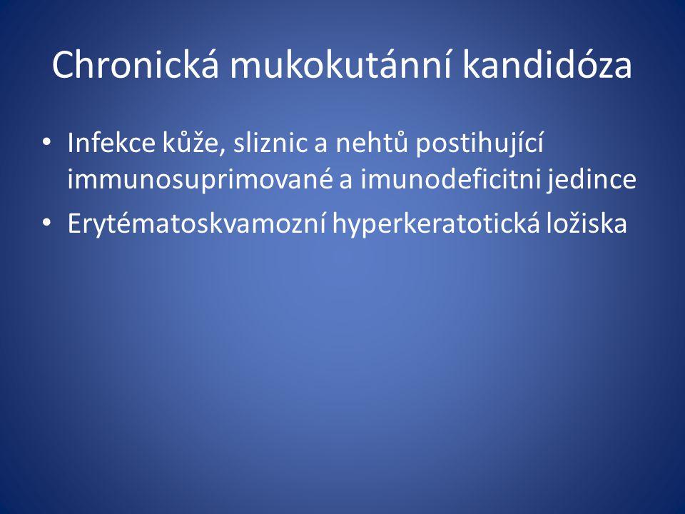 Chronická mukokutánní kandidóza Infekce kůže, sliznic a nehtů postihující immunosuprimované a imunodeficitni jedince Erytématoskvamozní hyperkeratotická ložiska