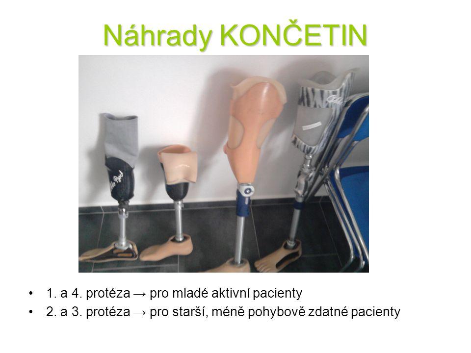 Náhrady KONČETIN 1. a 4. protéza → pro mladé aktivní pacienty 2. a 3. protéza → pro starší, méně pohybově zdatné pacienty