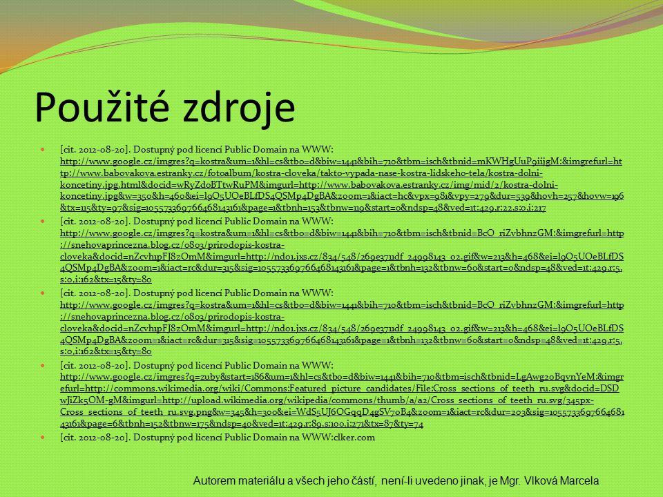 Použité zdroje [cit. 2012-08-20]. Dostupný pod licencí Public Domain na WWW: http://www.google.cz/imgres?q=kostra&um=1&hl=cs&tbo=d&biw=1441&bih=710&tb