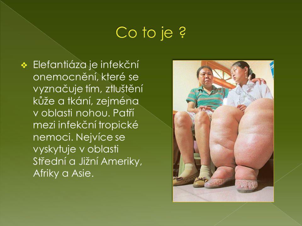  Elefantiáza je infekční onemocnění, které se vyznačuje tím, ztluštění kůže a tkání, zejména v oblasti nohou.