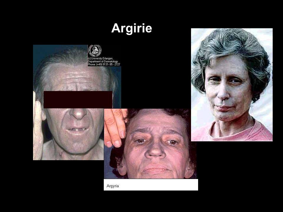 """14 Stříbro (Ag) """"ARGYRIE"""" následek chronické inhalační i orální expozice Ag (kovové i sloučeniny) –protikuřácké pastilky, roztok AgNO 3 na zánět dásní"""