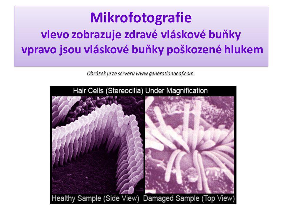 Mikrofotografie vlevo zobrazuje zdravé vláskové buňky vpravo jsou vláskové buňky poškozené hlukem Obrázek je ze serveru www.generationdeaf.com.