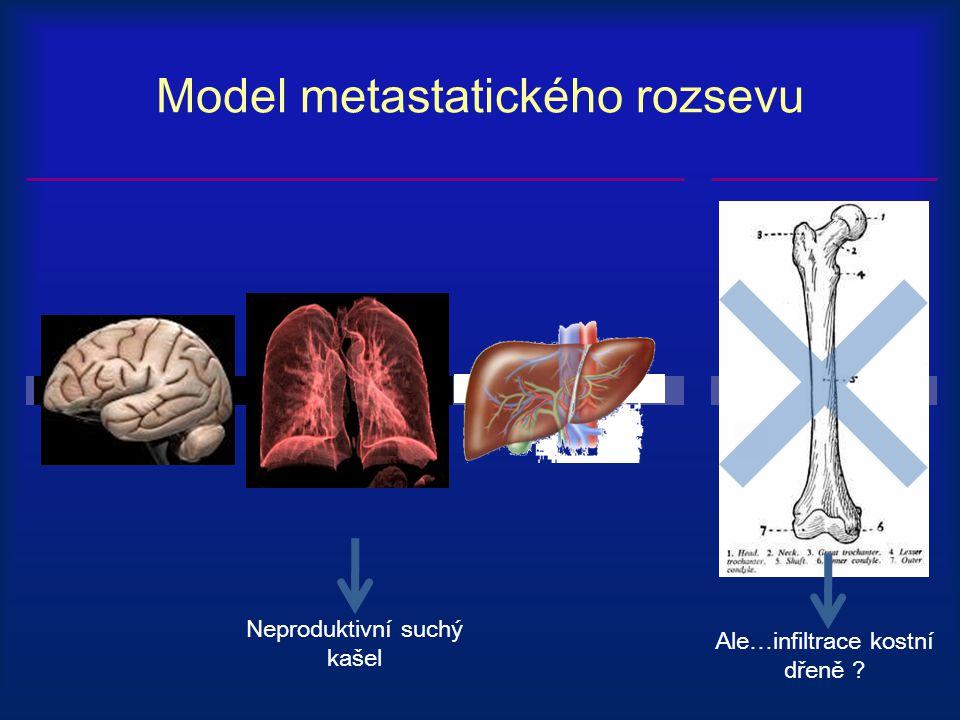 Model metastatického rozsevu Neproduktivní suchý kašel Ale…infiltrace kostní dřeně ?