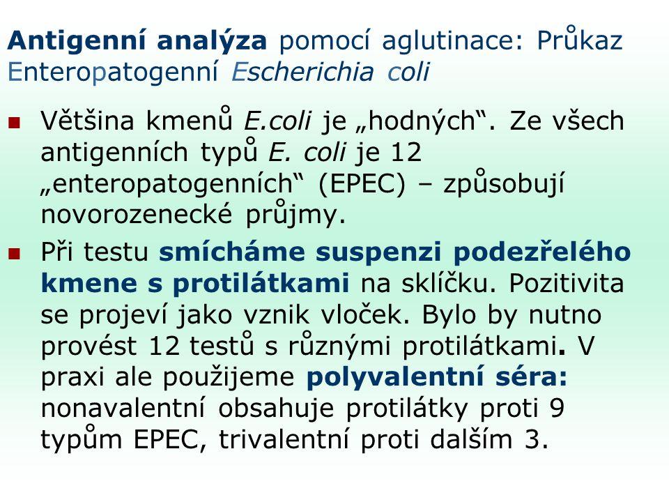 """Antigenní analýza pomocí aglutinace: Průkaz Enteropatogenní Escherichia coli Většina kmenů E.coli je """"hodných ."""