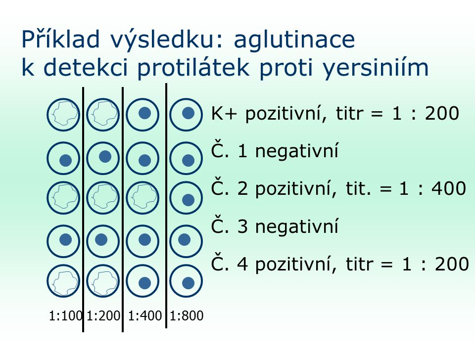 Příklad výsledku: aglutinace k detekci protilátek proti yersiniím K+ pozitivní, titr = 1 : 200 Č.