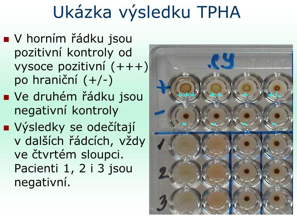 Ukázka výsledku TPHA V horním řádku jsou pozitivní kontroly od vysoce pozitivní (+++) po hraniční (+/-) Ve druhém řádku jsou negativní kontroly Výsledky se odečítají v dalších řádcích, vždy ve čtvrtém sloupci.