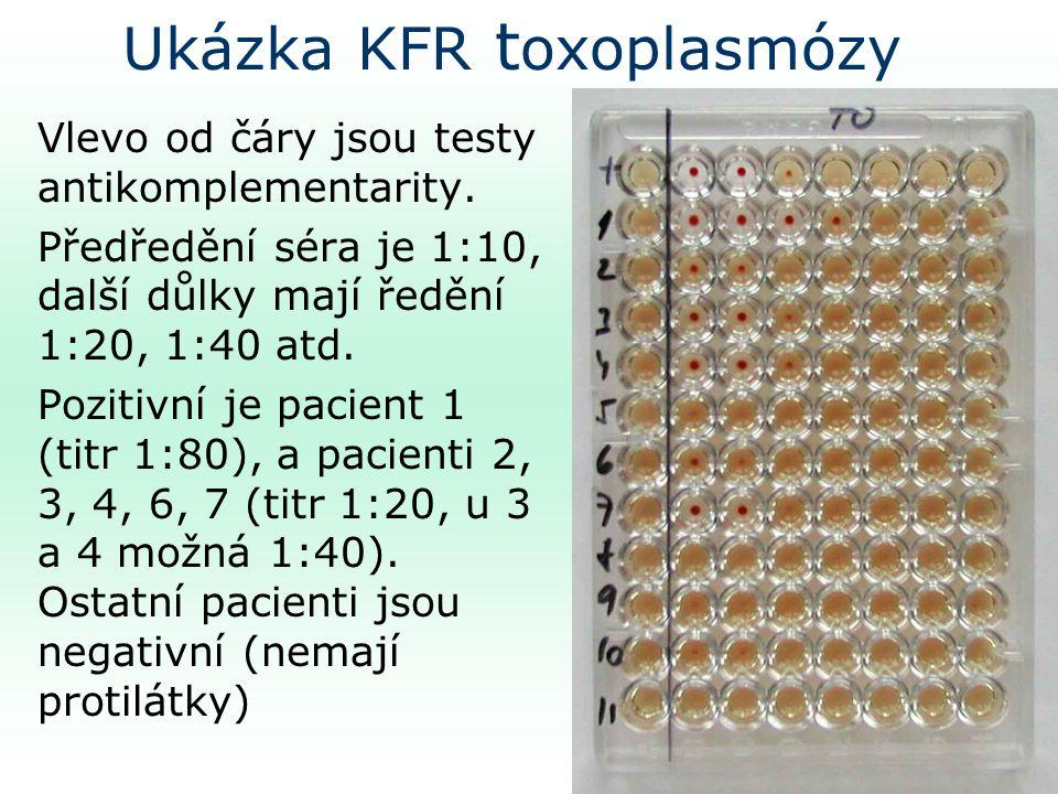 Ukázka KFR t oxoplasmózy Vlevo od čáry jsou testy antikomplementarity.
