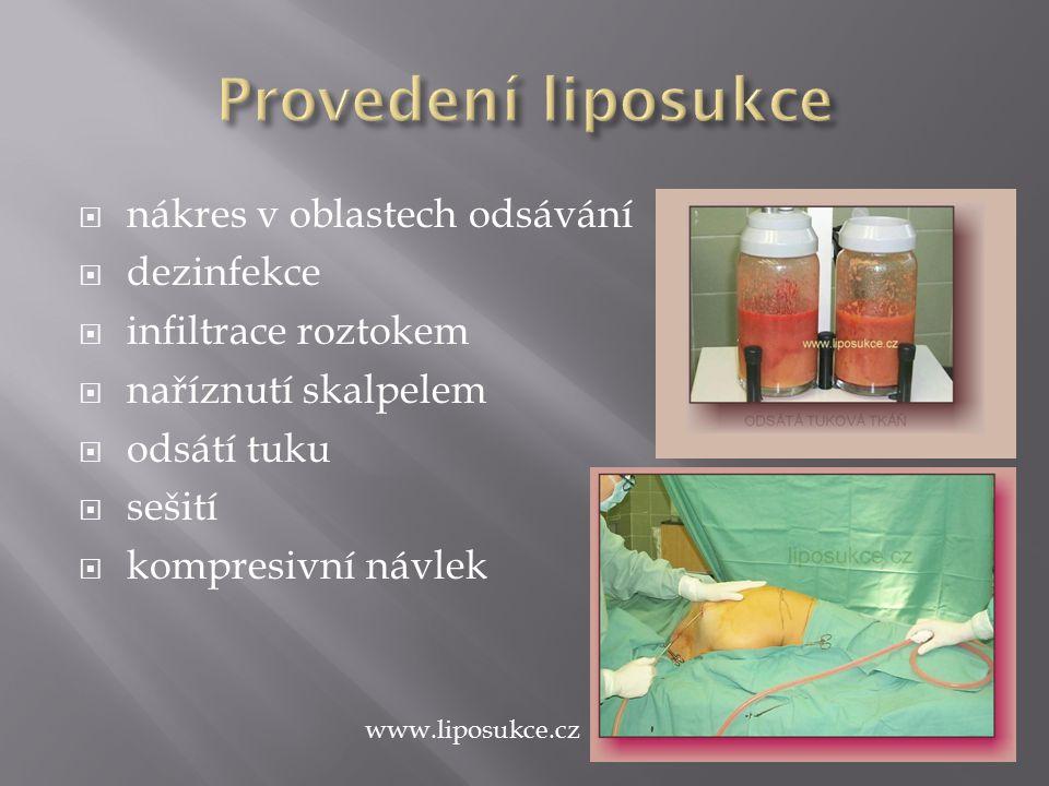  nákres v oblastech odsávání  dezinfekce  infiltrace roztokem  naříznutí skalpelem  odsátí tuku  sešití  kompresivní návlek www.liposukce.cz