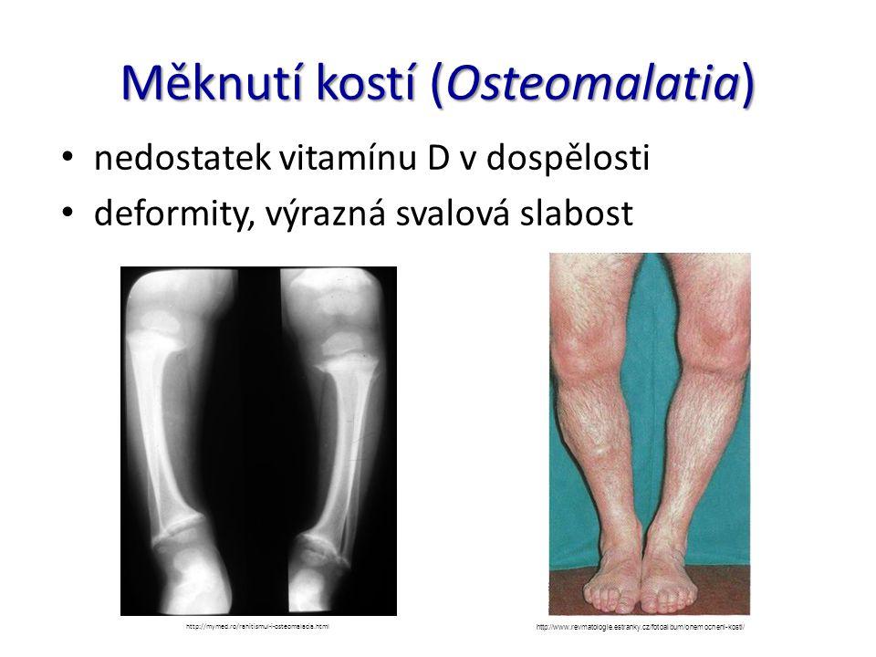 Měknutí kostí (Osteomalatia) nedostatek vitamínu D v dospělosti deformity, výrazná svalová slabost http://mymed.ro/rahitismul-i-osteomalacia.html http