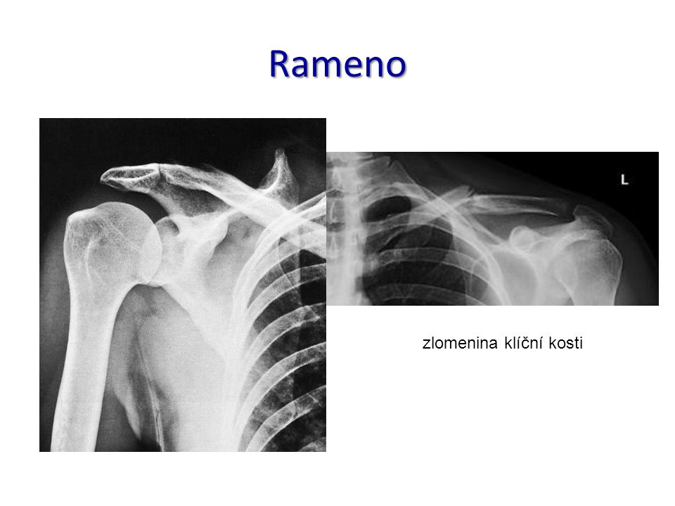 Rameno zlomenina klíční kosti