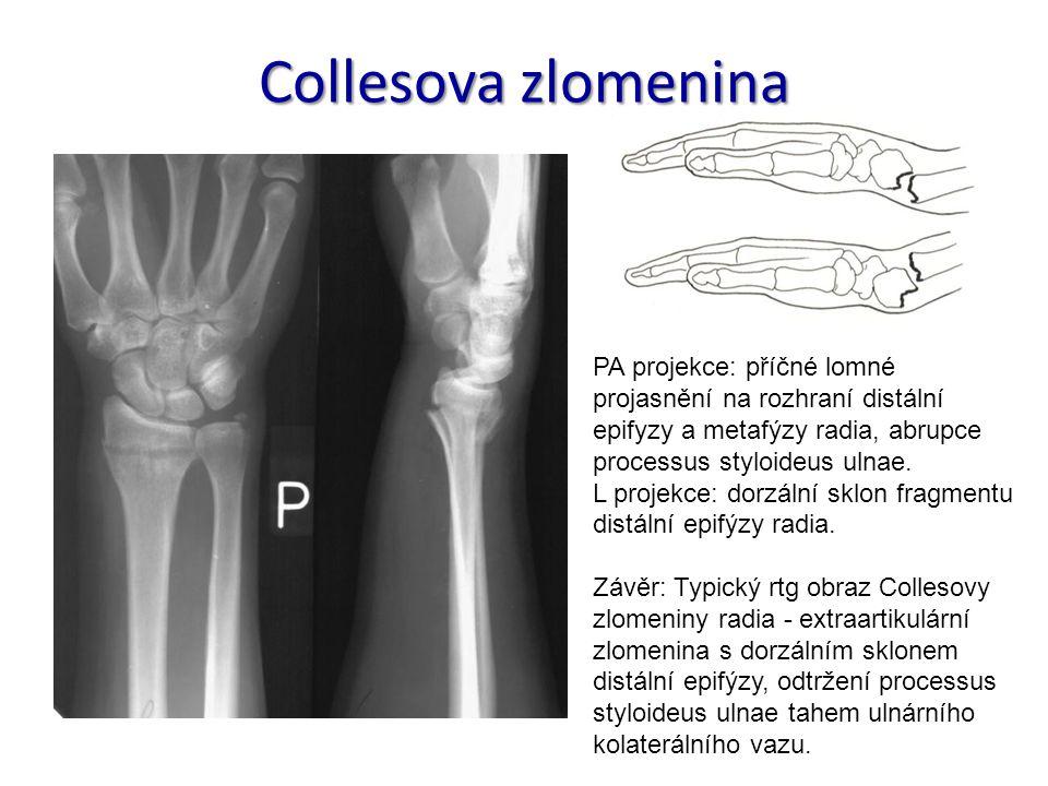 Collesova zlomenina PA projekce: příčné lomné projasnění na rozhraní distální epifyzy a metafýzy radia, abrupce processus styloideus ulnae. L projekce