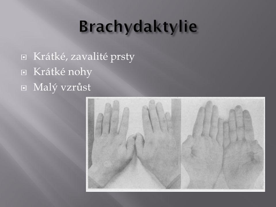  Krátké, zavalité prsty  Krátké nohy  Malý vzrůst