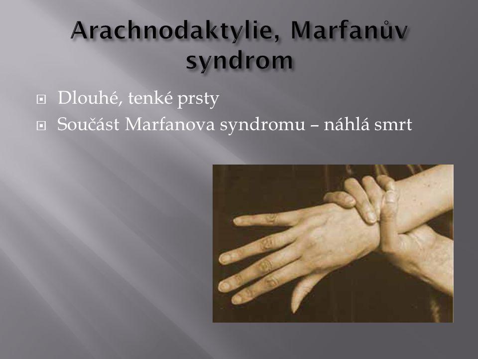  Dlouhé, tenké prsty  Součást Marfanova syndromu – náhlá smrt