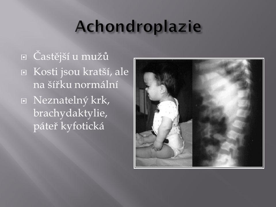 Častější u mužů  Kosti jsou kratší, ale na šířku normální  Neznatelný krk, brachydaktylie, páteř kyfotická