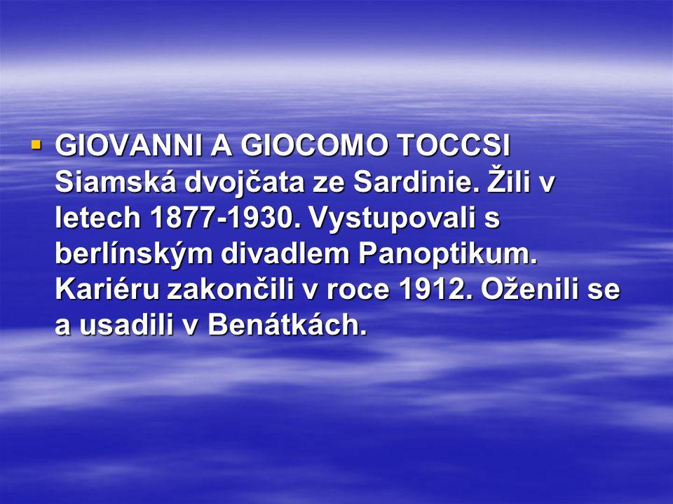  GIOVANNI A GIOCOMO TOCCSI Siamská dvojčata ze Sardinie. Žili v letech 1877-1930. Vystupovali s berlínským divadlem Panoptikum. Kariéru zakončili v r
