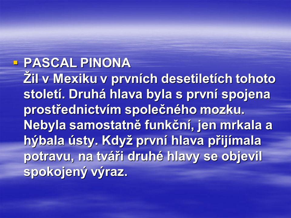  PASCAL PINONA Žil v Mexiku v prvních desetiletích tohoto století. Druhá hlava byla s první spojena prostřednictvím společného mozku. Nebyla samostat