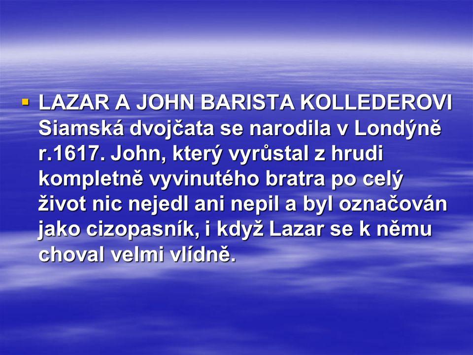  LAZAR A JOHN BARISTA KOLLEDEROVI Siamská dvojčata se narodila v Londýně r.1617. John, který vyrůstal z hrudi kompletně vyvinutého bratra po celý živ