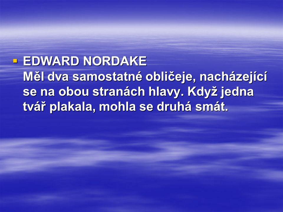  EDWARD NORDAKE Měl dva samostatné obličeje, nacházející se na obou stranách hlavy. Když jedna tvář plakala, mohla se druhá smát.
