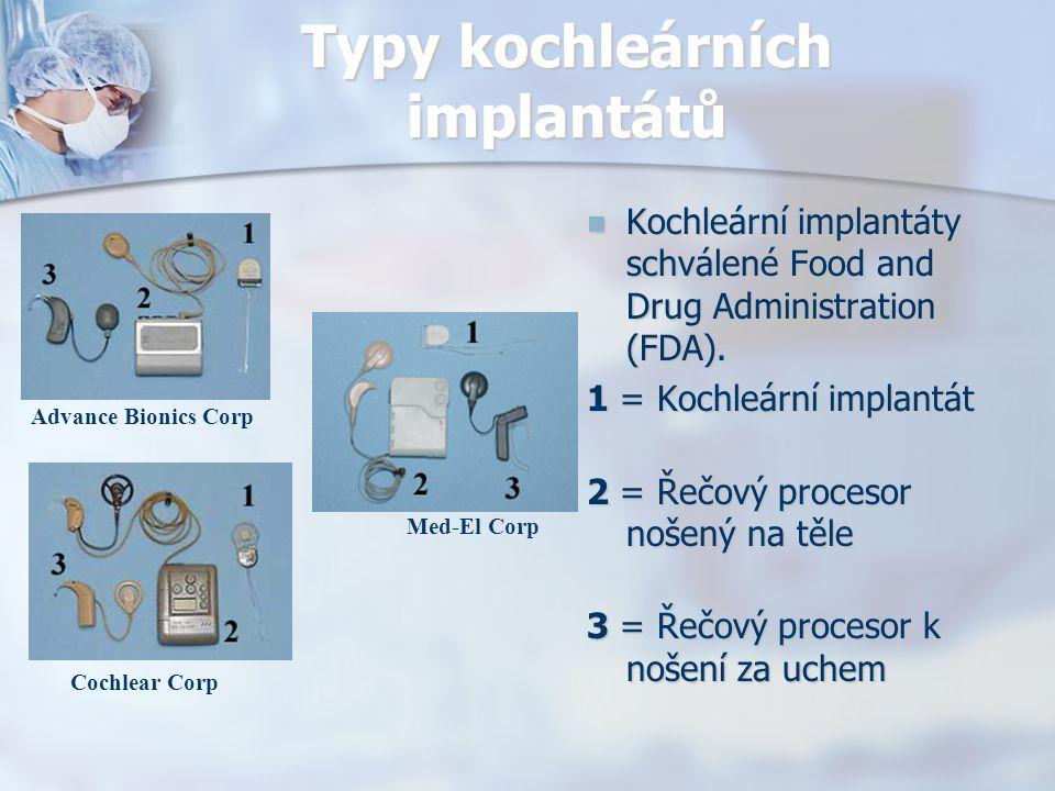 Typy kochleárních implantátů Kochleární implantáty schválené Food and Drug Administration (FDA). 1 = Kochleární implantát 2 = Řečový procesor nošený n