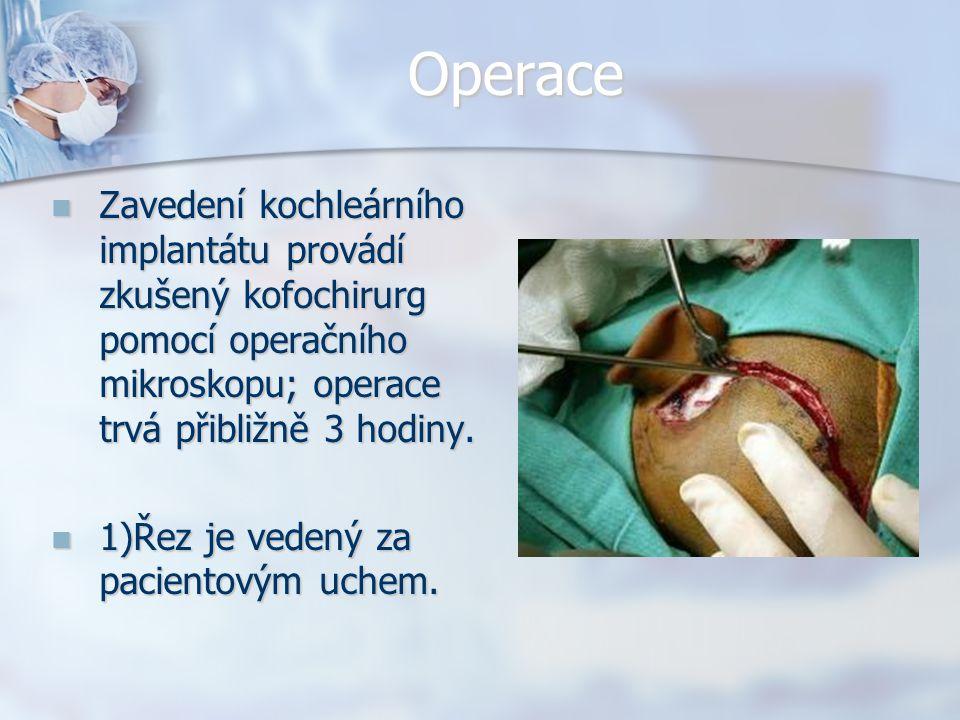 Operace Zavedení kochleárního implantátu provádí zkušený kofochirurg pomocí operačního mikroskopu; operace trvá přibližně 3 hodiny. Zavedení kochleárn