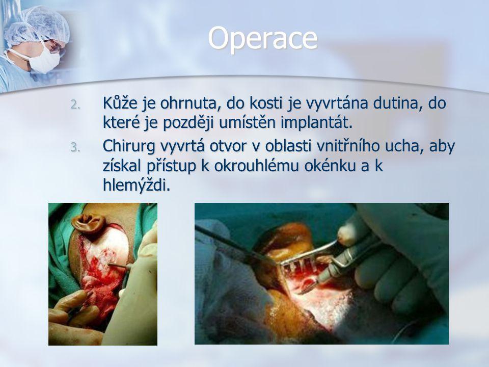 Operace 2. Kůže je ohrnuta, do kosti je vyvrtána dutina, do které je později umístěn implantát. 3. Chirurg vyvrtá otvor v oblasti vnitřního ucha, aby
