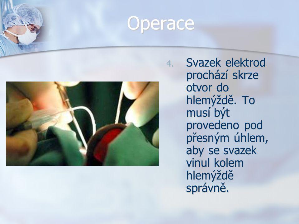 Operace 4. Svazek elektrod prochází skrze otvor do hlemýždě. To musí být provedeno pod přesným úhlem, aby se svazek vinul kolem hlemýždě správně.