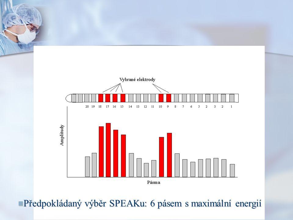Předpokládaný výběr SPEAKu: 6 pásem s maximální energií Předpokládaný výběr SPEAKu: 6 pásem s maximální energií
